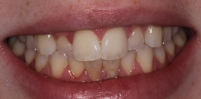 tooth whitening in donegal
